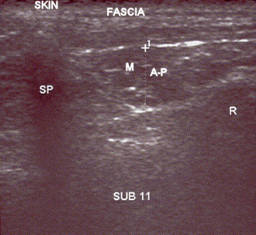 Paraspinal Muscle Spasm