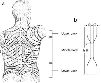 Langer Skin Lines