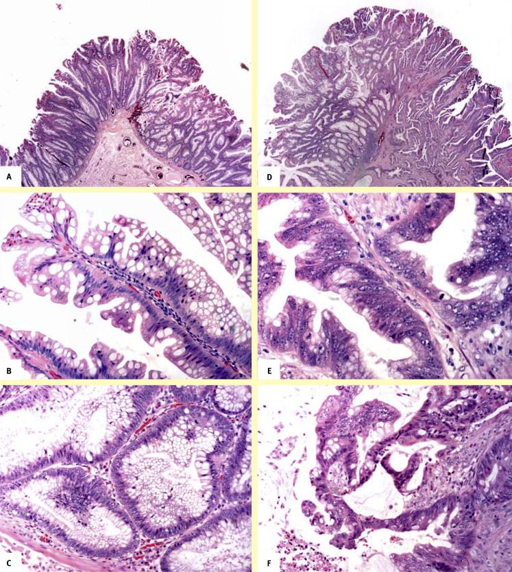 Mucosal Prolapse Polyp