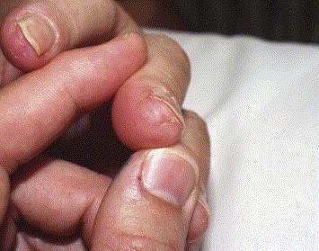 Cicatrices cupuliformes de la pulpe du troisième doigt.