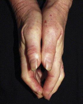 Sclérodactylie avec télangiectasies à la base du pouce gauche.