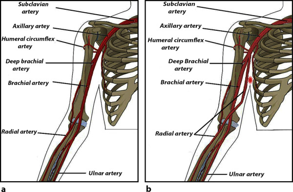 high origin of radial artery from the axillary artery: case report, Human Body