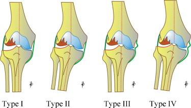 Total knee arthroplasty in valgus knee - ScienceDirect