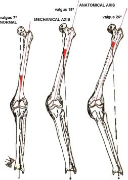 Total knee arthroplasty in severe valgus deformity: Interest of ...