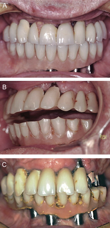 Implant Prosthodontics: A Patient-Oriented Strategy