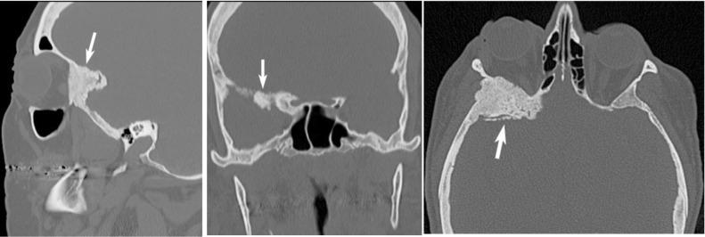 intraosseous meningioma of the sphenoid bone - sciencedirect, Human Body