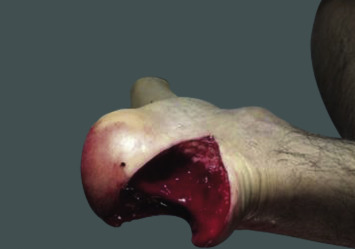 Open tuber calcaneus fracture caused by a meat cleaver: A case ...