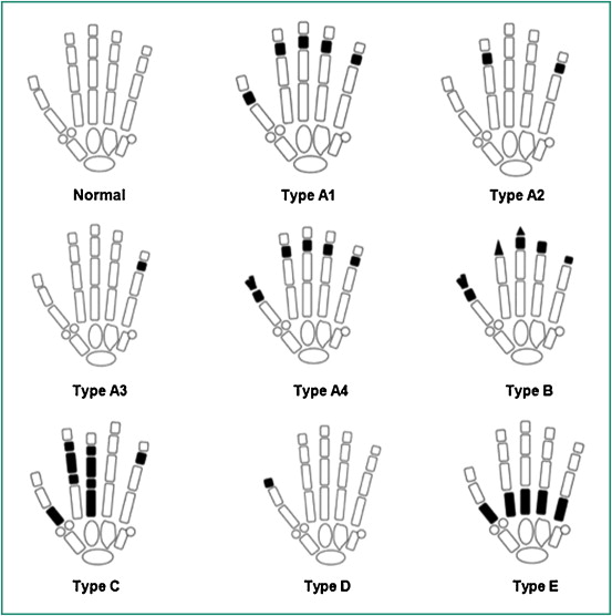 isolated and syndromic brachydactylies: diagnostic value of hand x, Skeleton