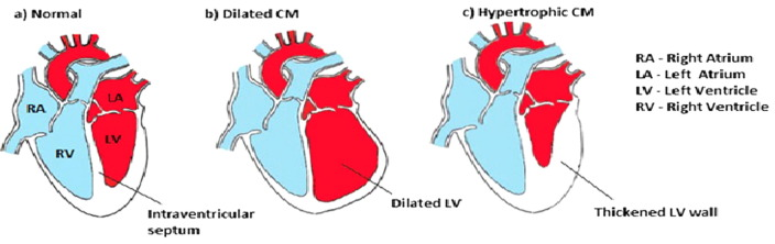detection and diagnosis of dilated cardiomyopathy and hypertrophic, Skeleton