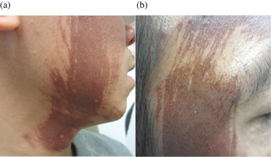 Erythema and hyperpigmentation four days following 50% TCA application to the ...