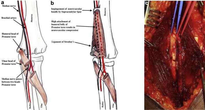 ischemic brachial artery entrapment syndrome by supracondylar, Cephalic Vein