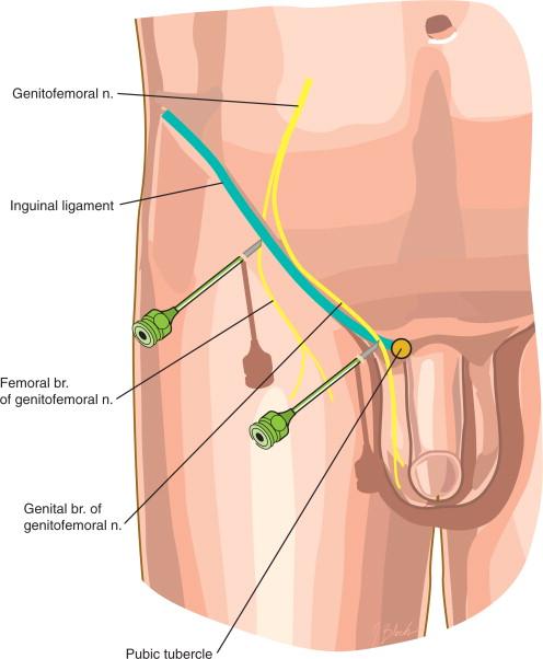 genitofemoral nerve - sciencedirect topics, Muscles