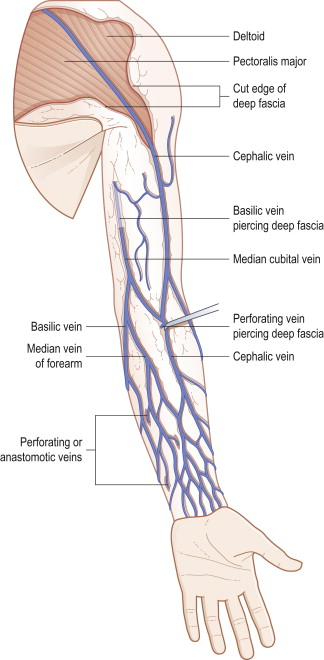 cephalic vein - sciencedirect topics, Cephalic Vein