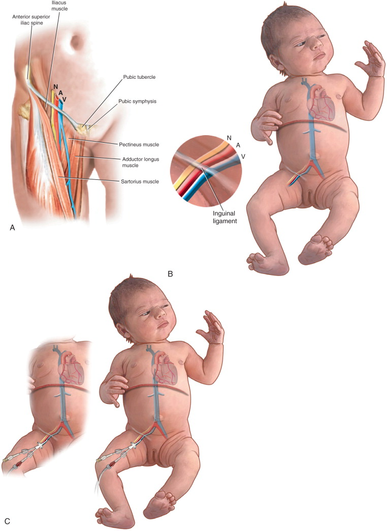 femoral vein - sciencedirect topics, Muscles