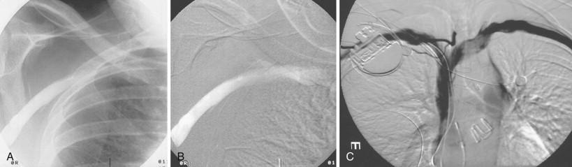 oblique vein of the left atrium - sciencedirect topics, Cephalic Vein