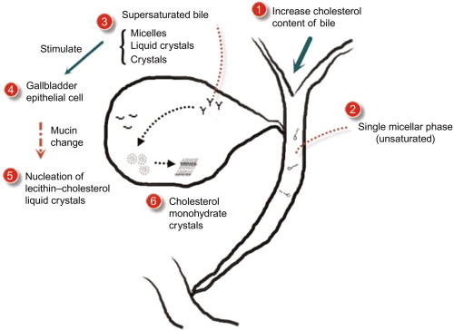Genetics of gallstone disease sciencedirect a diagram indicating the general process of cholesterol crystal formation from supersaturated bile ccuart