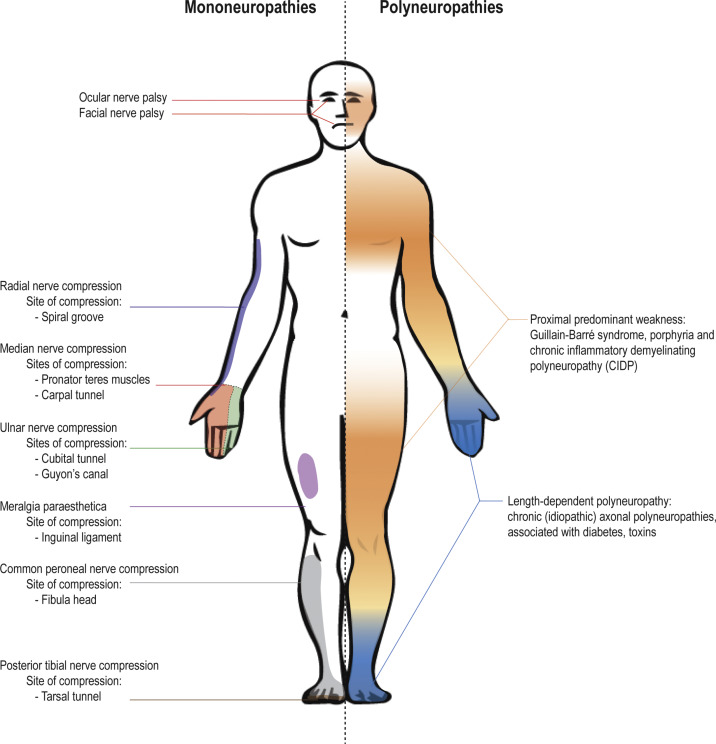 Peripheral Neuropathy - an overview | ScienceDirect Topics