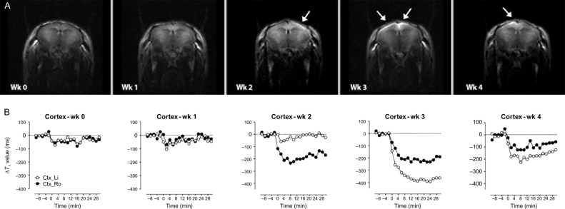 Applications of Neuroimaging Biomarkers in CNS Drug