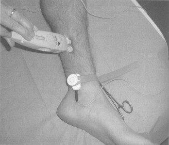 Saphenous Nerve - an overview   ScienceDirect Topics