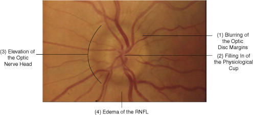 cfc70324b80b0 Abnormalities of the optic disc - ScienceDirect