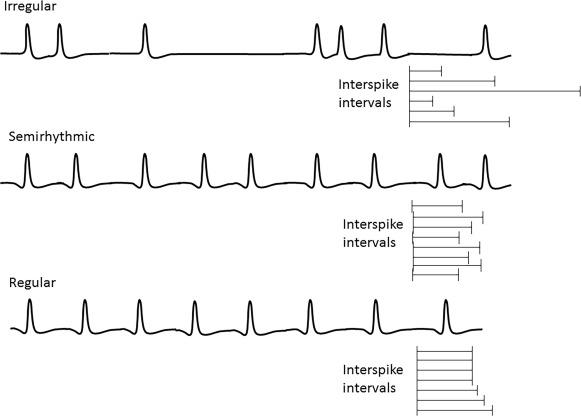 Waveform Morphology An Overview Sciencedirect Topics