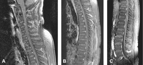 Tropical myelopathies - ScienceDirect