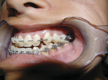 Orthognathic Surgery for Patients with Maxillofacial Deformities ...