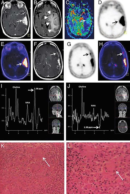 Petmri In Infection And Inflammation Sciencedirect
