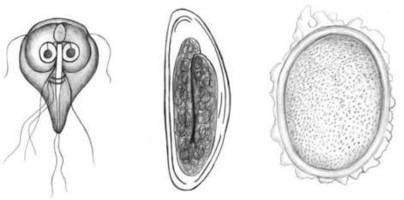 Enterobiosis giardiasis. Mik azok a bélférgek?, Mi a veszélyes enterobiosis?