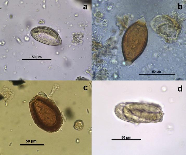 Oxyuriasis A pinworms enterobiosis