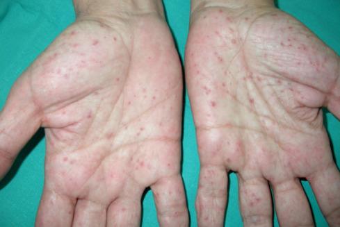 síndrome de gorlin-goltz diagnóstico de diabetes