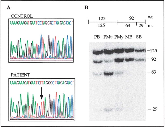 A Stop-Codon Mutation in the Human mtDNA Cytochrome c
