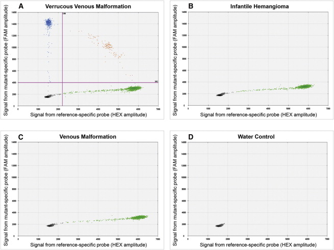 A Somatic MAP3K3 Mutation Is Associated with Verrucous Venous ...