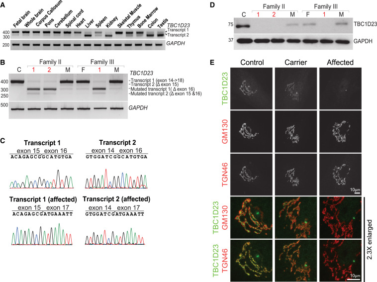 Homozygous Mutations in TBC1D23 Lead to a Non-degenerative Form of