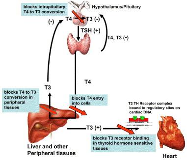 plaquenil causing cardiomyopathy