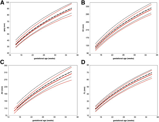 Development Of Customized Fetal Growth Charts In Twins Sciencedirect