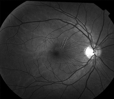 Red Free Image Of Idiopathic Epiretinal Membrane Dashed Lines Mark Adjacent Retinal Folds