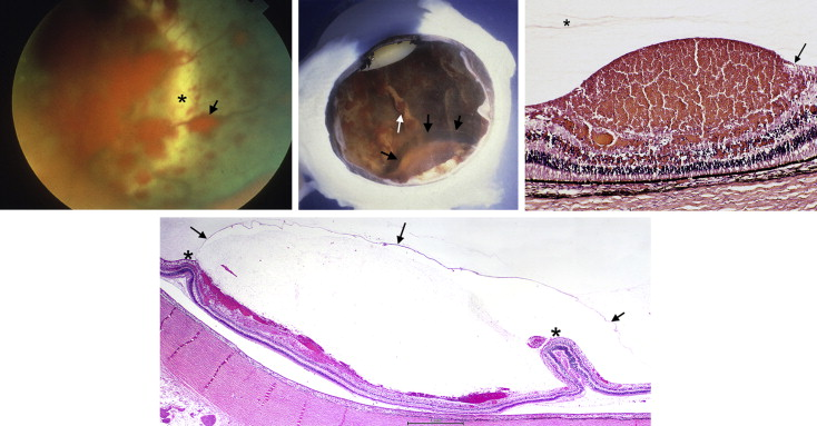 Clinicopathological Findings in Abusive Head Trauma: Analysis of 110 Infant Autopsy Eyes