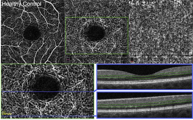 Deep Retinal Capillary Nonperfusion Is Associated With Photoreceptor