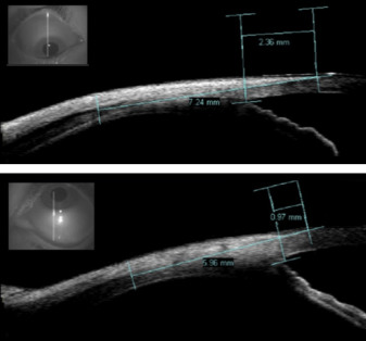 2d35185bd0c73e ... Download full-size image. Figure 5. Anterior segment optical coherence  tomography ...