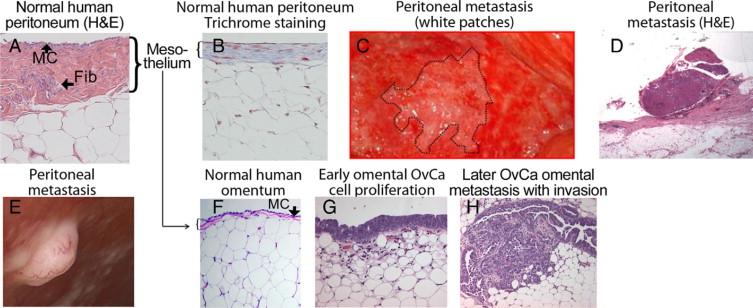 Ovarian Cancer Development And Metastasis Sciencedirect