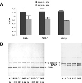 Expression of Protein Kinase CK2 in Astroglial Cells of