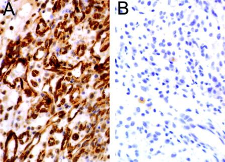 Infectious Angiogenesis: Bartonella bacilliformis Infection