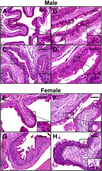 Foxa1 knockout results in hyperplasia in male mice and keratinizing  squamous…