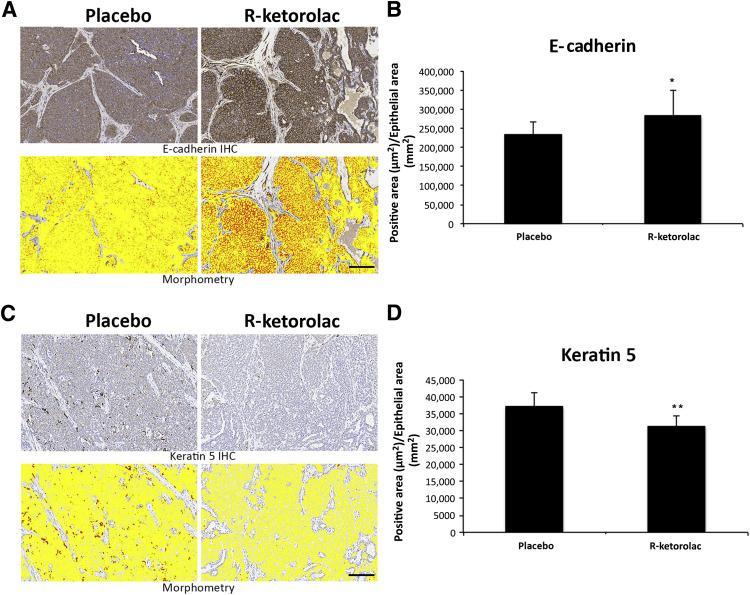 The R-Enantiomer of Ketorolac Delays Mammary Tumor