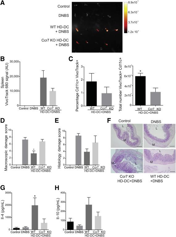 anticorpi împotriva antigenelor helminth bacterii aerobe exemple