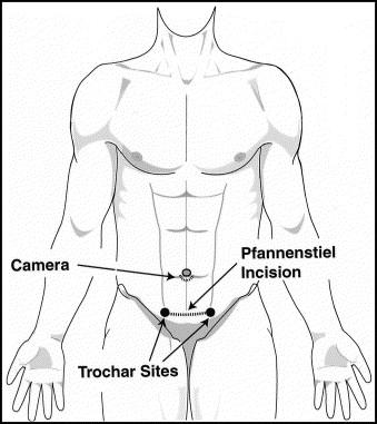 Laparoscopically Assisted Ileocolectomy For Crohns Disease Through