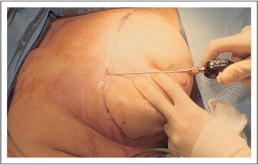 Excellent words Breast reconstruction necrosis will