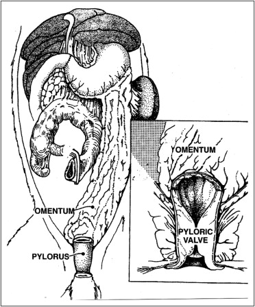 Pyloric valve transposition as substitute for a colostomy in humans ...