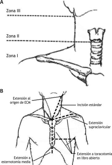 Lesiones vasculares del cuello - ScienceDirect